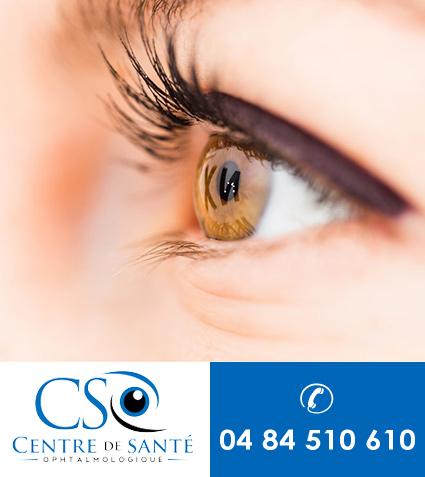 cso ophtalmologie avignon